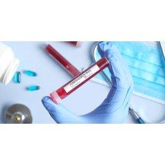 Общественный фонд «Милосердие и здоровье Узбекистана» принимает средства на борьбу с коронавирусом